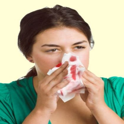 aleve side effects nose bleeds herbal remedies for nose bleeding treat nose bleeding