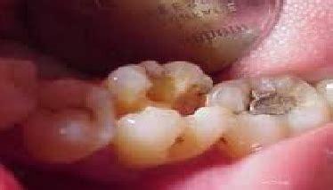 Biaya Pemutihan Gigi Laser biaya tambal gigi di puskesmas