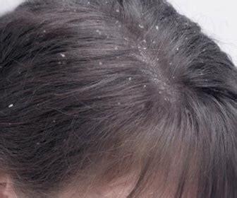 dermatitis en el cuero cabelludo la dermatitis seborreica y su relaci 243 n con la alopecia