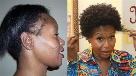 hairstyles for black women without edges how i repaired my thinning edges 2 products video http