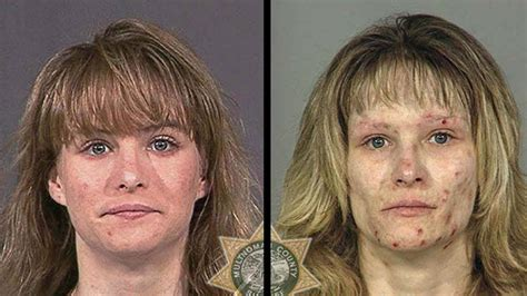 Detox From Meth Use by Photos How Methhetamine Destroys Your And