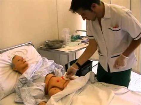 alimentazione peg assistenza al paziente con enterostomia