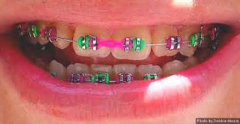 braces bands colors why braces might two colored rubber bands around them