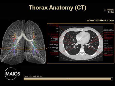 Thorax Ct Anatomy