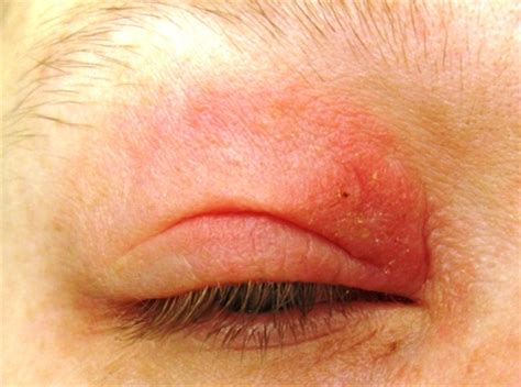 itchy eyelids causes symptoms treatment swollen