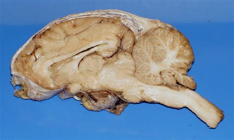 sagittal section of sheep brain sheep brain dissection images