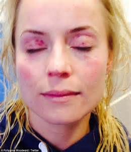Blood Pours From Tv Presenter Pollyanna Woodward S Nose As