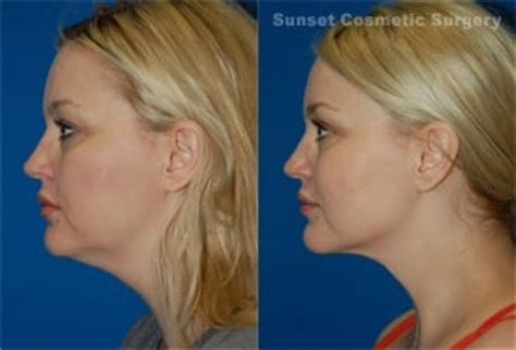double chin tuck sew dr svehlak 44 year old patient neck jaw line and