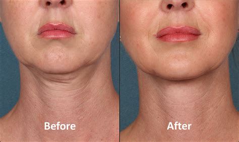 Kybella: double chin fat reduction   Connecticut Skin