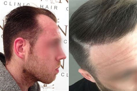 hair transplant journey melbourne hair transplant clinic mitchel before after vinci hair clinic