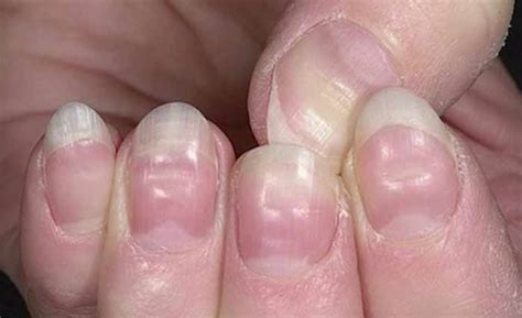 dent in nail bed nail bed injuries up to date nail ftempo