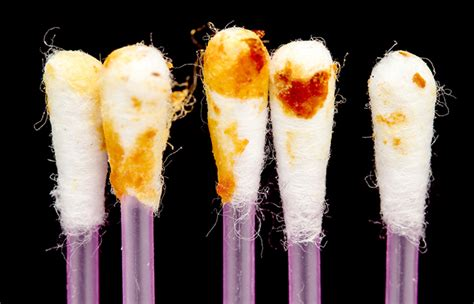 color of earwax the color of your earwax can tell how healthy you are