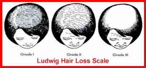 Female Pattern Hair Loss Scale | stages of male female pattern baldness thinscalp com