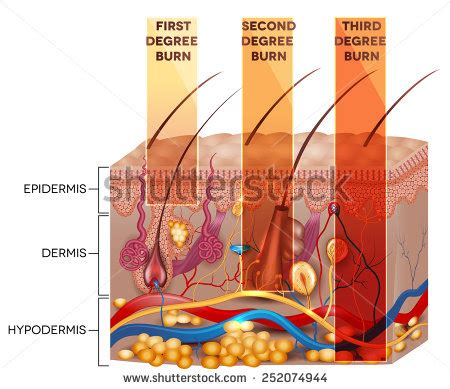 epidermis stock photo images 1 157 epidermis royalty free images and photography available to skin burn stock images royalty free images vectors