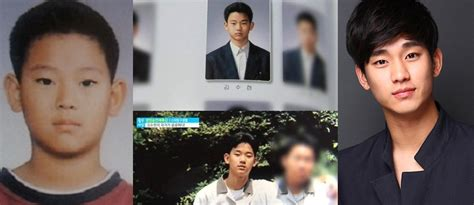 kim soo hyun surgery kim soo hyun plastic surgery cosmetic surgery vs