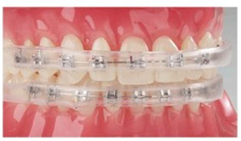 comfort covers for braces how to cope with mouth sores from braces