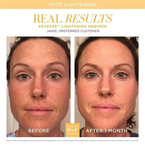 Beau Visage See Your Skins Sun Damage by If You Thought I Wish I Could Get Rid Of Those