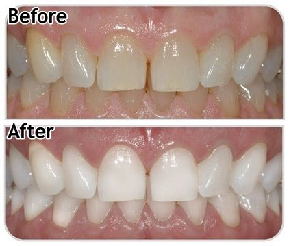 white your teeth at home beautiful shoes