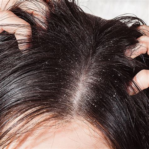 best shoo for hair best dandruff shoo for color treated hair 28 images