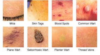 Warts between legs submited images