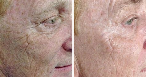 Alat Skin Test prp auckland