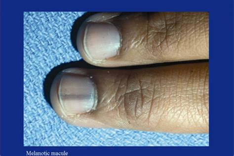 dark line on fingernail dark bands on fingernails