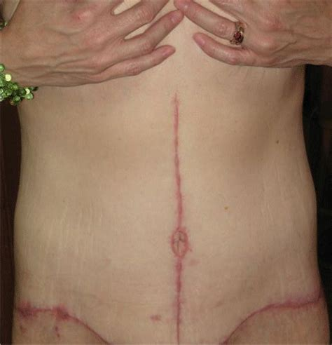 c section scar after 5 months 44 years old 3 pregnancies 1 abortion 1 miscarriage 1