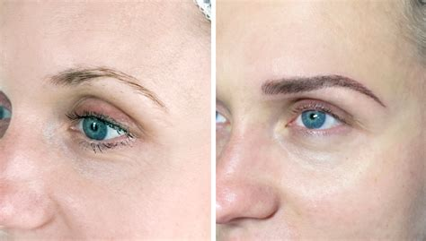 eyebrow tattoo removal london permanent makeup