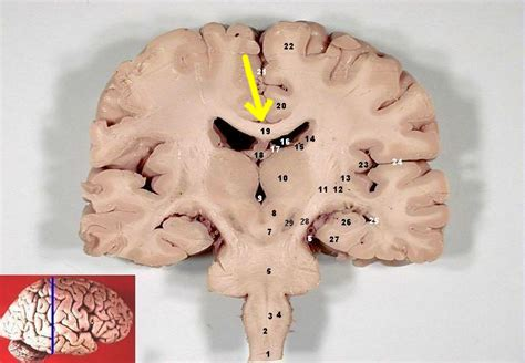 frontal section of brain file human brain frontal coronal section description 2