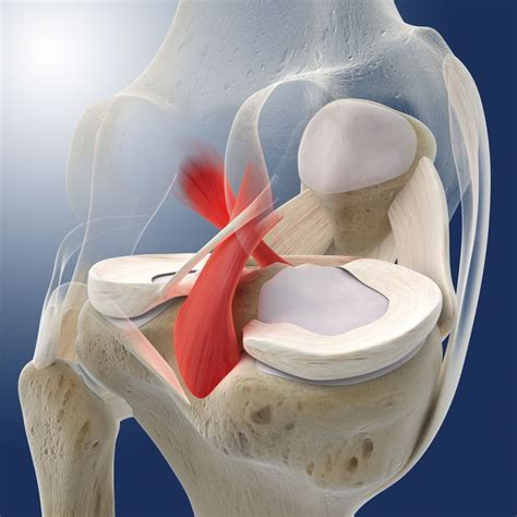 cruciate ligament tear posterior cruciate ligament pcl tears and treatment