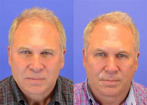 hair restoration before and after pictures clevens face fue hair transplant pictures charlotte nc patient 194