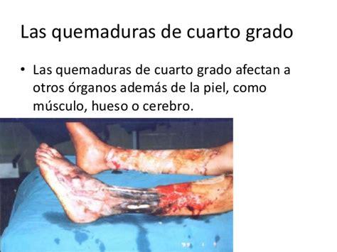 quemaduras cuarto grado patologia quirurgica quemaduras