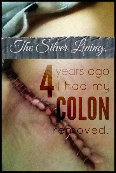 J Pouch Blood In Stool by 97 Best Images About Colon Cancer Surgery On