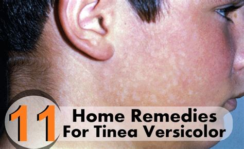 best medicine for tinea versicolor 11 home remedies for tinea versicolor care health