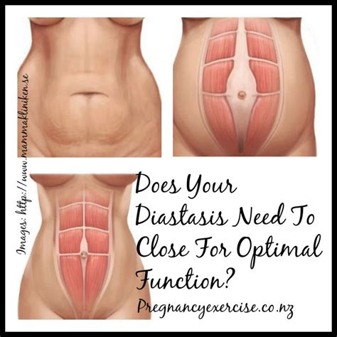 1000 images about post partum on belly binding nursing bras and diastasis recti