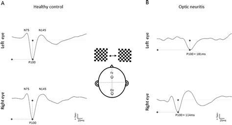 pattern reversal visual evoked potentials clinical evoked potentials in neurology a review of