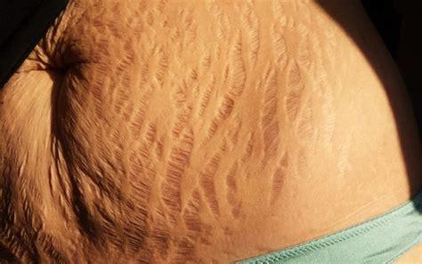 heavy hair on vigina canha de valoriza 231 227 o do corpo real invade redes com