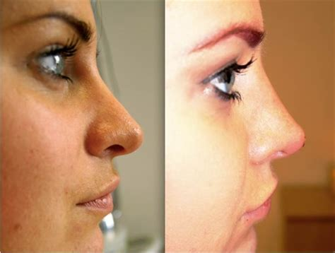 nose shaper before and after dermal fillers for noses
