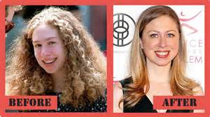 Chelsea clinton plastic surgery before after jpg