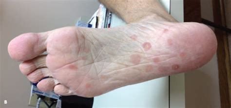 syphilis rash on hands the gallery for gt syphilis rash on hands and feet