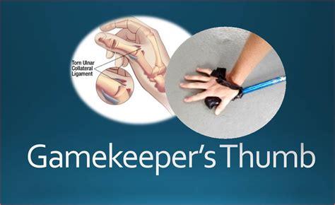 keepers thumb gamekeeper s thumb injury