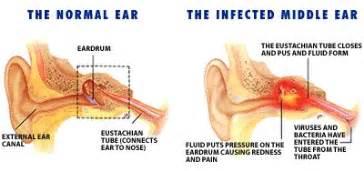 ear infections in children dr adam stewart