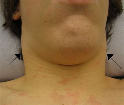 swollen lymph nodes neck swollen lymph nodes near ear jaw chin in neck armpits groin ehealthstar