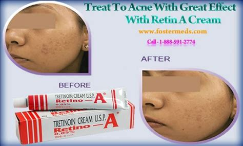 can numbskin cream affect the acne causes problem not only to your skin but affects you