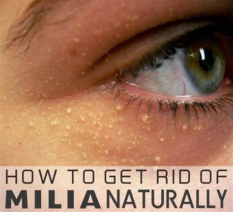 how do i get rid of my old sofa 25 best ideas about botox under eyes on pinterest