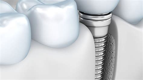 dentist gloucester ma gloucester dental