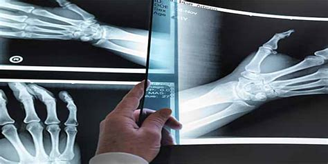 bone cancer expectancy with bone cancer www pixshark images galleries with a bite