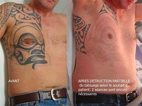 enlever tattoo laser quebec d 233 tatouage centre dermatologique vaucluse cavaillon