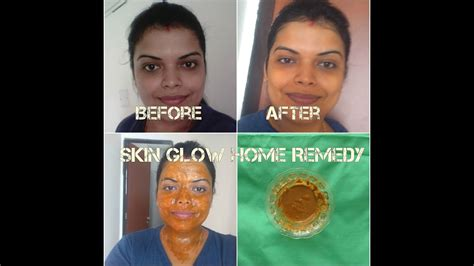 Glow Acne With Tto instant skin glow home remedies in pack for fairness acne free glowing