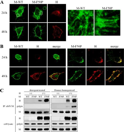 24 h protein interaction of the m f50p protein with the h protein a
